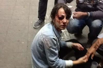 Jornalista Giuliana Avallone, da TV Folha, ferida no olho