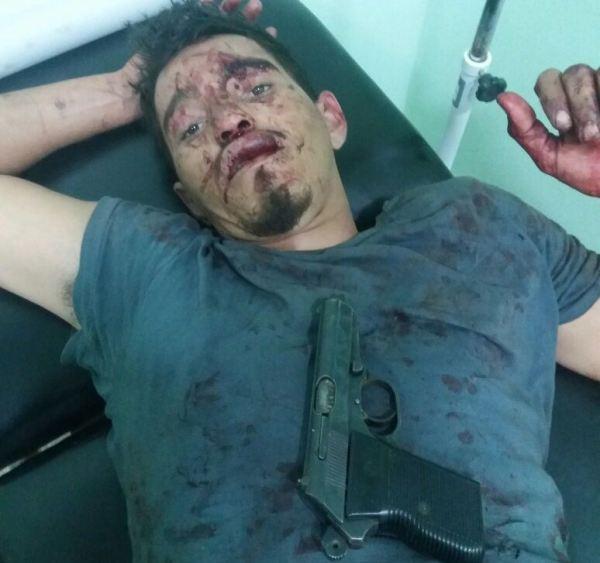 O ladrão preso, depois de ferido com um tiro na perna.