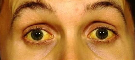 febre-amarela